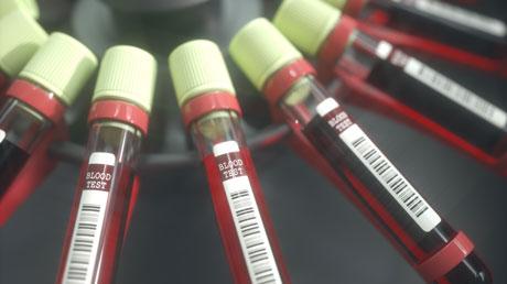 New Biomarker Test Improves Diagnosis Of Ovarian Cancer University Of Gothenburg
