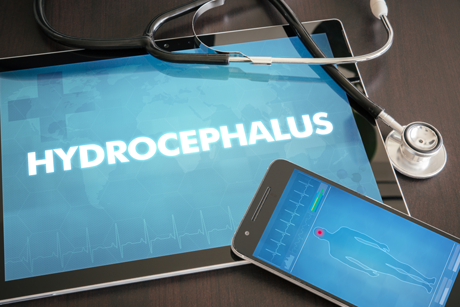 IPad showing text: Hydrocephalus