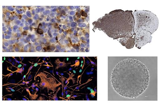 Cancer cell research images - Helena Carén group